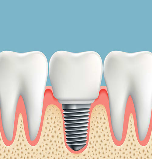 Dental Implants in West Lethbridge