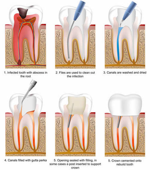 Root Canals in West Lethbridge